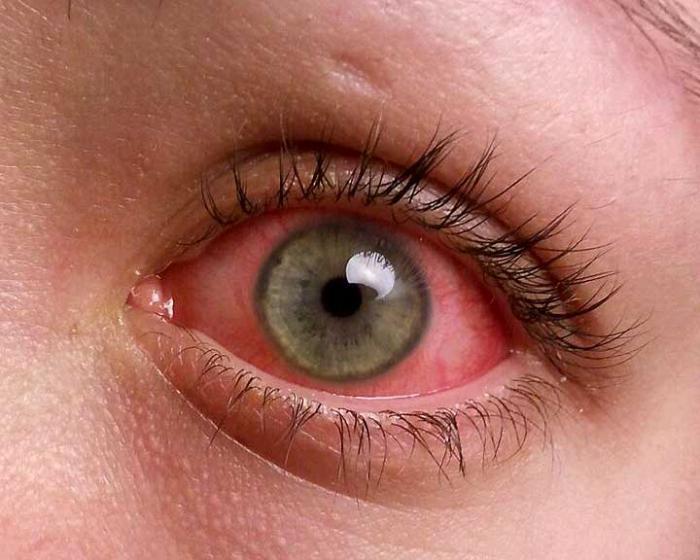 Что такое конъюнктивит? Симптомы, причины и лечение конъюнктивита