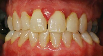 опух и болит зуб