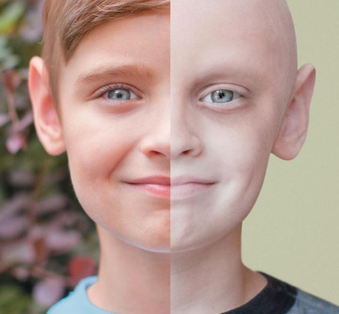 фракция асд 2 при лечении рака