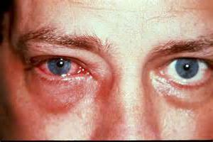 Ципролет глазные капли это антибиотик или нет