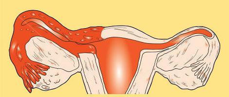 Сактосальпинкс: что это такое? Как можно вылечить сактосальпинкс упражнениями?