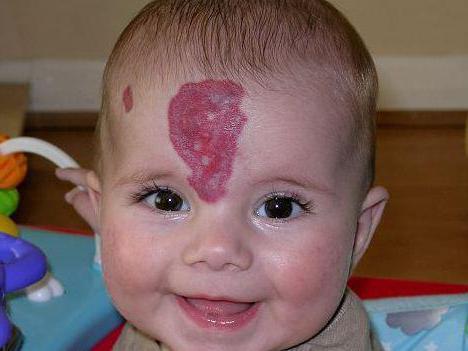 родимое пятно на лице