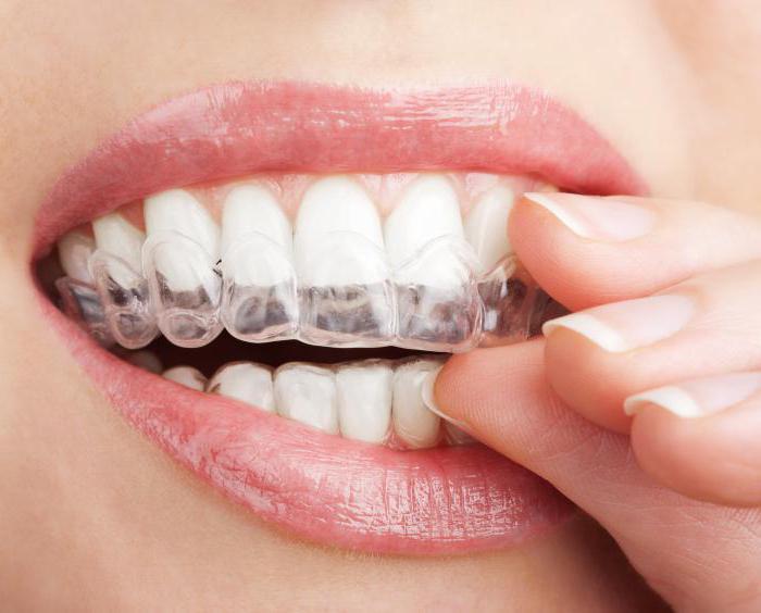 Как снять чувствительность зубов в домашних условиях