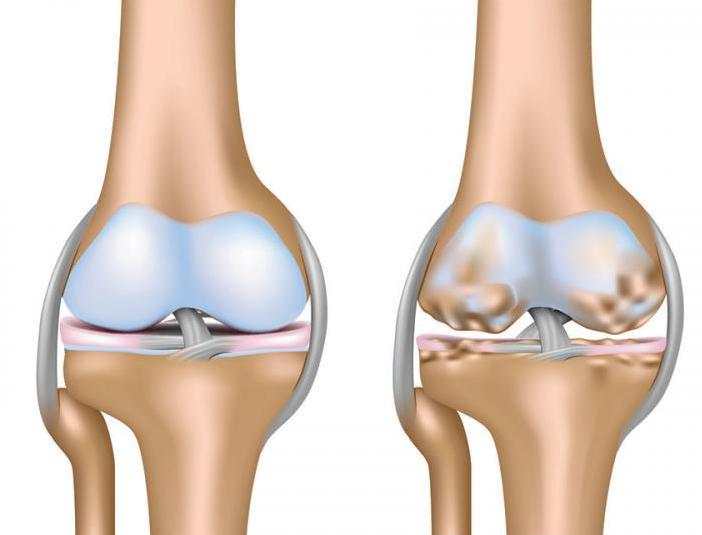 Уколы плазмы в коленный сустав отзывы