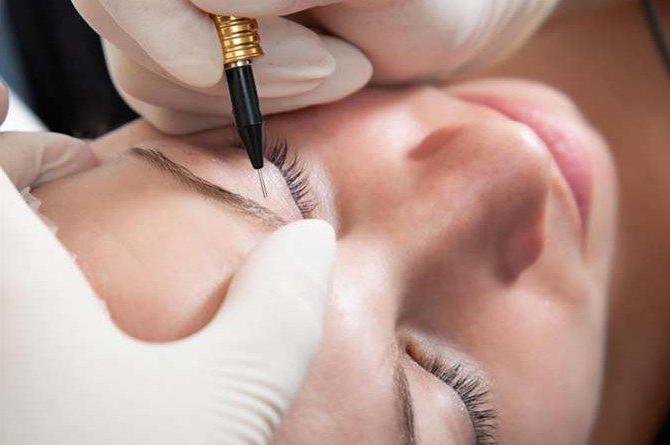 Коррекция татуажа: особенности, описание процедуры и отзывы