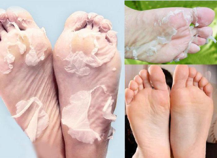 пилинг ног кислотами