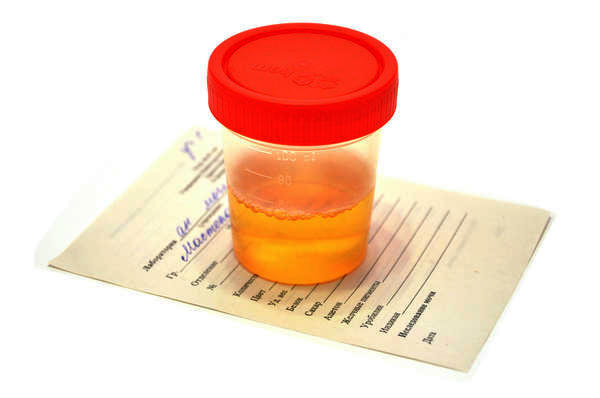 Опасна ли кровь в моче во время беременности