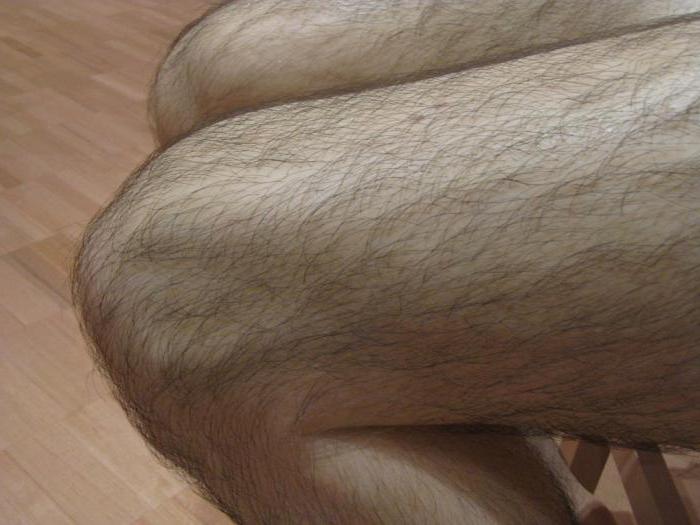 У девочки 5 лет на ногах волосы