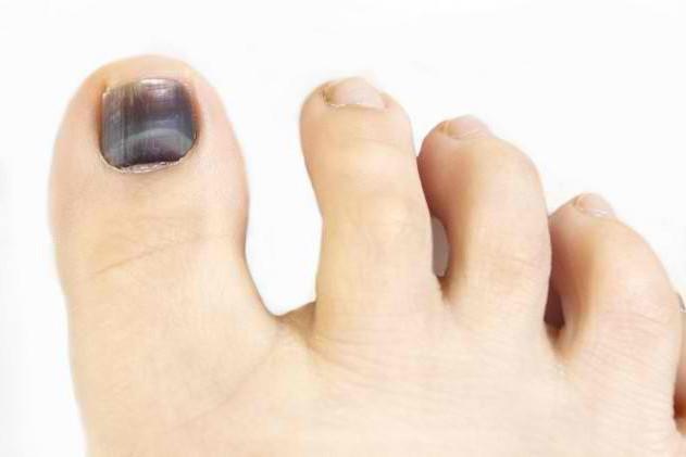 Черный грибок ногтя на большом пальце ноги