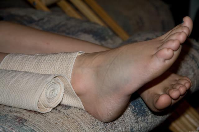 подвернула ногу опухла щиколотка что можно сделать народными средствами