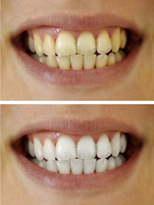3д крест полоски для отбеливания зубов