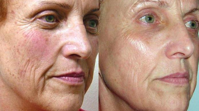 Отзывы фотоомоложение кожи лица в минске
