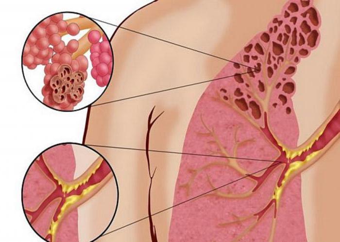 Попкорновая болезнь легких: симптомы, лечение, причины возникновения