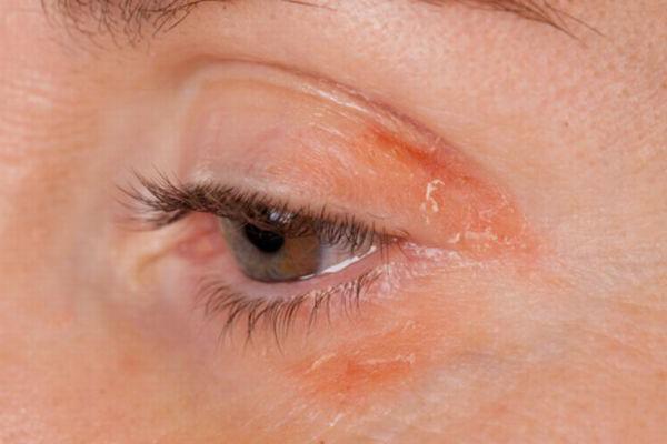 демодекс на лице, лечение