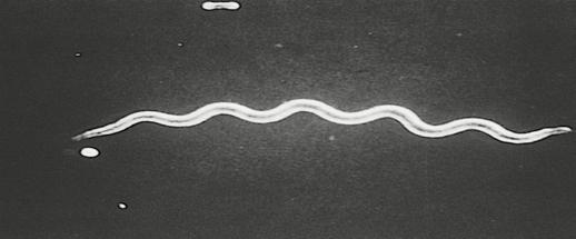 Возбудитель сифилиса - бледная спирохета