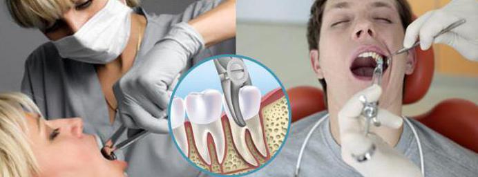 после удаления зуба можно ли курить