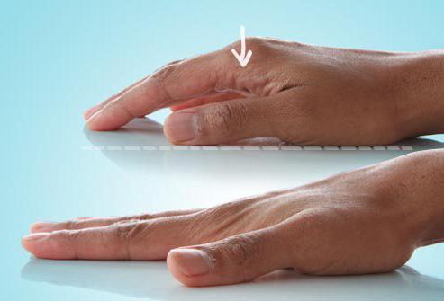 остеоартроз кистей рук фото