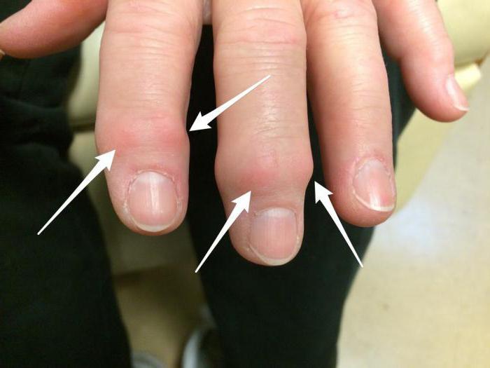 лечение артрита мелких суставов кистей рук