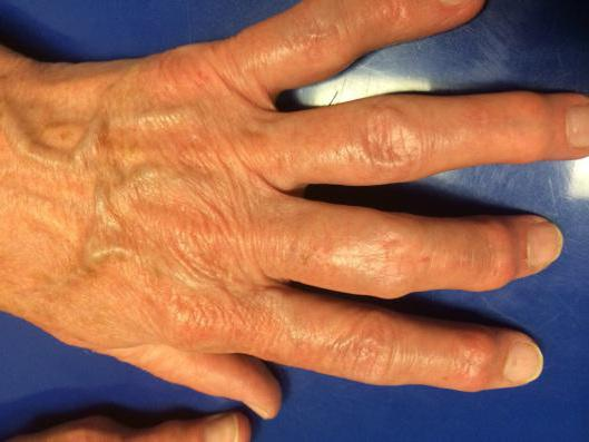 остеоартроз кистей рук симптомы
