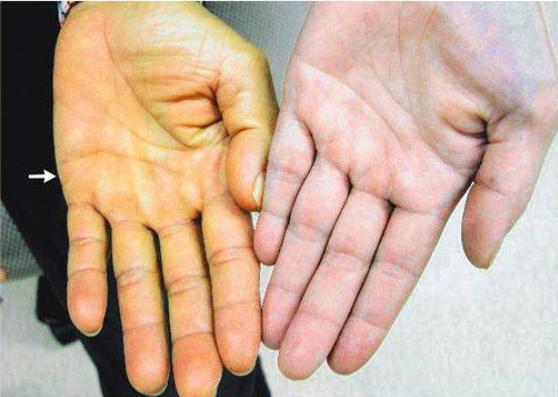 Признаки и симптомы токсического поражения печени