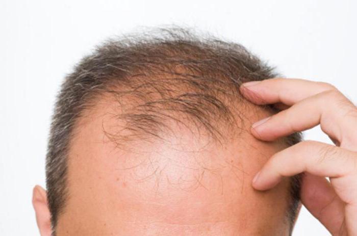 средства предотвращающие выпадение волос