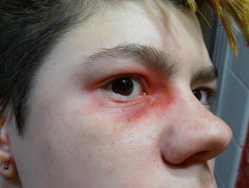 1888869 - Ударил глаз веткой болит что делать