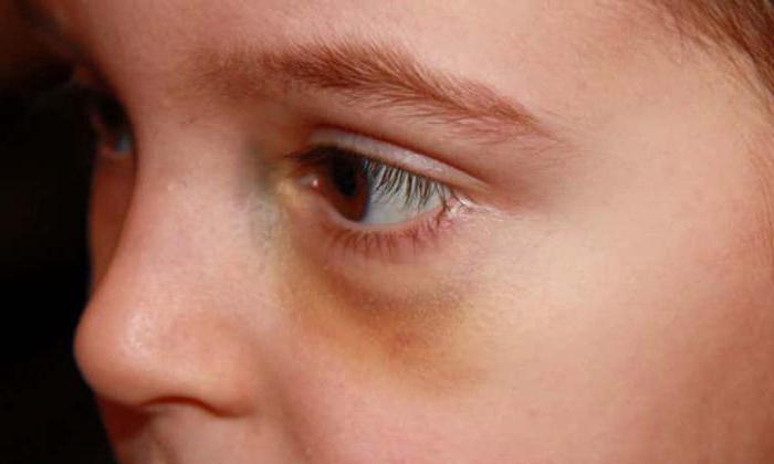 1888873 - Ударил глаз веткой болит что делать