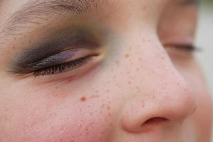 1888880 - Ударил глаз веткой болит что делать