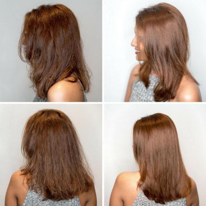 Средства для волос от электролизации