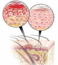 Дермовейт - противовоспалительное средство при экземе и псориазе
