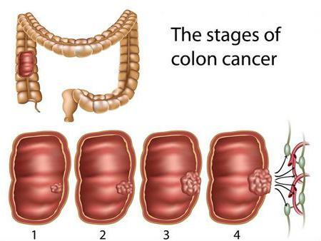 как провериться на рак кишечника