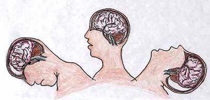 при диффузных аксональных повреждениях головного мозга