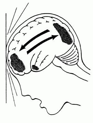 поражения головного мозга диффузно аксональное повреждение