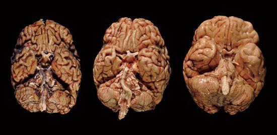 травма головы последствия