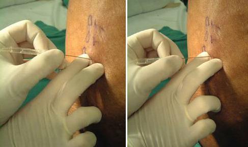 паравертебральная блокада с дипроспаном