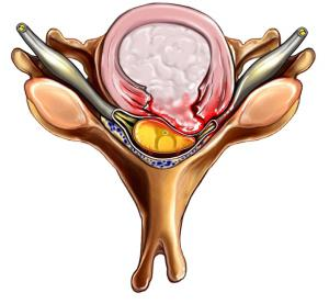 протрузия межпозвонковых дисков симптомы лечение