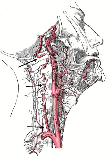 левая позвоночная артерия