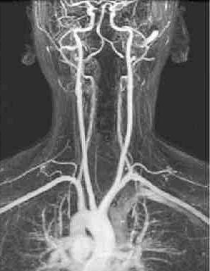 симптом позвоночной артерии