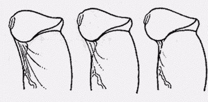 фото разрыв уздечки у мужчин