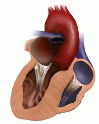 кардиопатия это