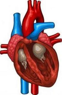 вторичная кардиопатия