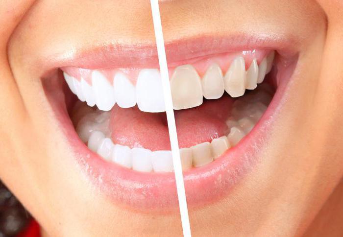 горячие отбеливание зубов