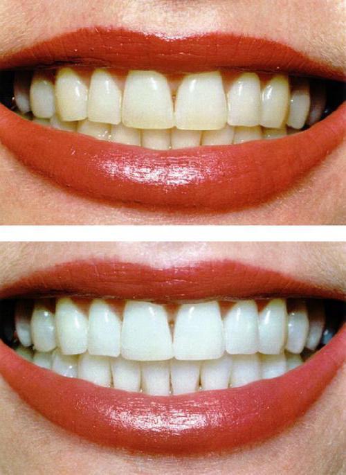 Zoom відбілювання зубів