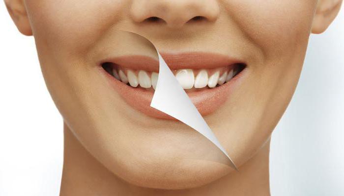 Global white система для відбілювання зубів відгуки