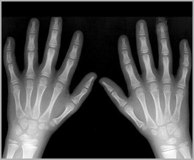 Что характерно для синдрома Фанкони? Причины, симптомы, диагностика