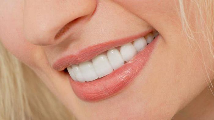 как крепятся виниры на передние зубы видео