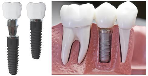импланты зубов противопоказания отзывы