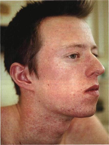 Симптомы и лечение краснухи у детей и