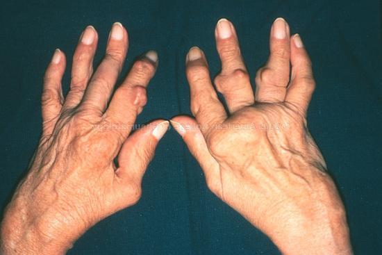 Как лечить народными средствами воспаление суставов пальцев рук
