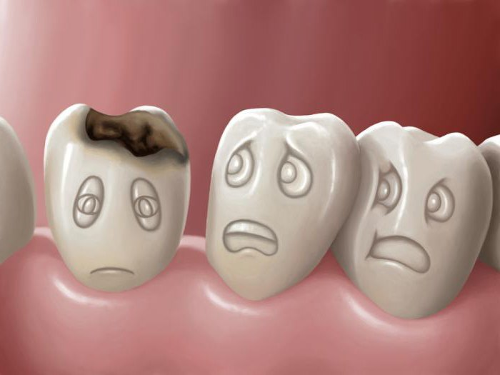 К чему снится дырка в зубе? Сонник подскажет ответ